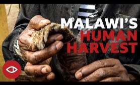 Malawi's Human Harvest - Full documentary - BBC Africa Eye